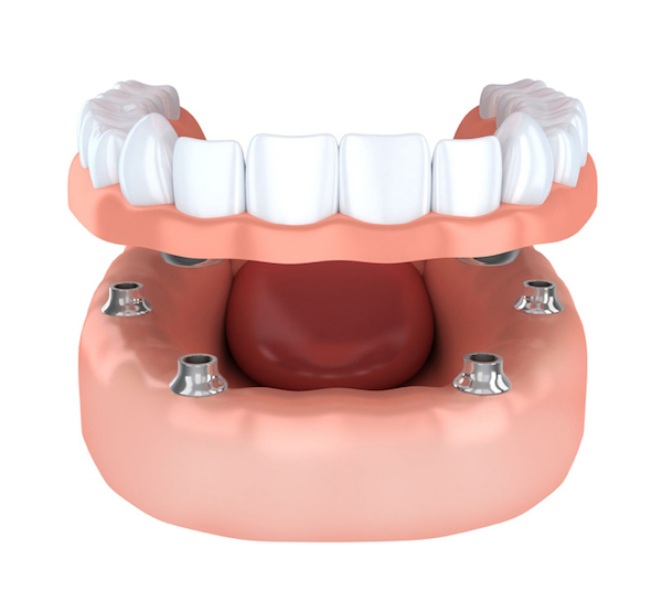 Recognizing the Role of Houston Dental Implants to
